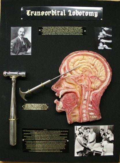 transorbital-lobotomy-curio-medical-oddity-walter-freeman